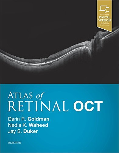Atlas of Retinal OCT: Optical Coherence Tomography von Elsevier
