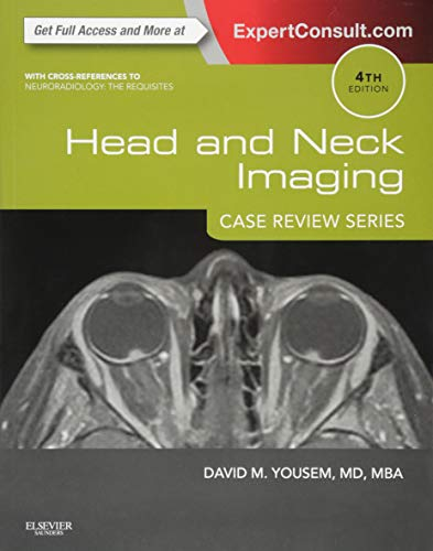 Head and Neck Imaging: Expert Consult - Online and Print (Case Review)