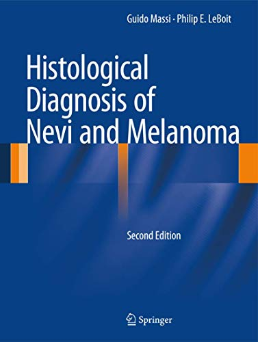 Histological Diagnosis of Nevi and Melanoma von Springer