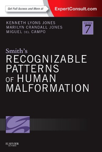 Smith's Recognizable Patterns of Human Malformation: Expert Consult - Online and Print von Saunders