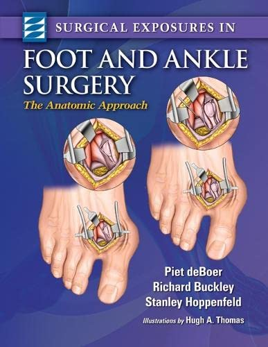 Surgical Exposures in Foot & Ankle Surgery: The Anatomic Approach von Lippincott Williams & Wilkins