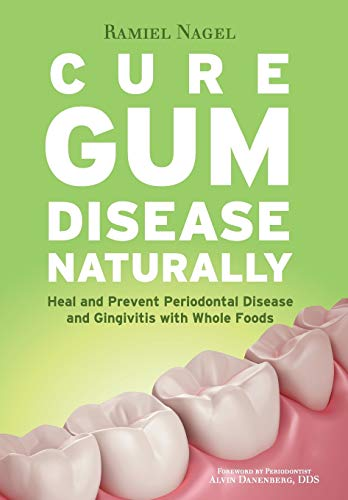 Cure Gum Disease Naturally: Heal Gingivitis and Periodontal Disease with Whole Foods von GOLDEN CHILD PUB