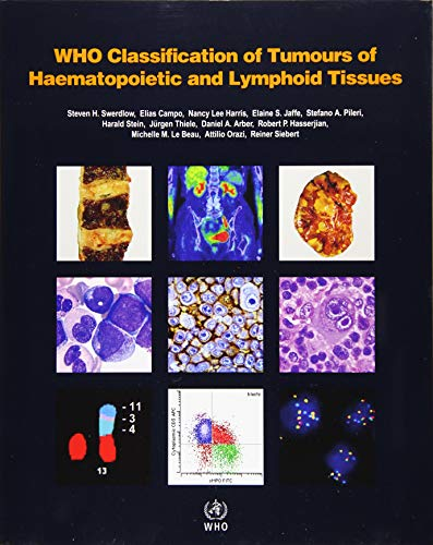WHO classification of tumours of haematopoietic and lymphoid tissues: Vol. 2 (World Health Organization Classification of Tumours, Band 2) von IARC