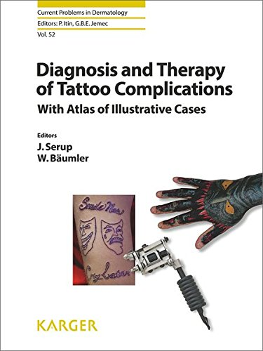 Diagnosis and Therapy of Tattoo Complications: With Atlas of Illustrative Cases. (Current Problems in Dermatology, Band 52) von Karger Verlag / Karger, S., Verlag fr Medizin und Naturwissenschaften GmbH