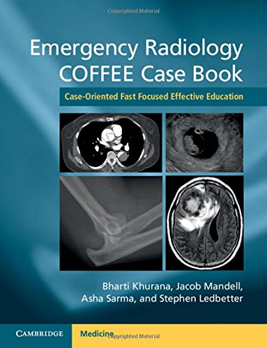 Emergency Radiology COFFEE Case Book: Case-Oriented Fast Focused Effective Education von Cambridge University Press